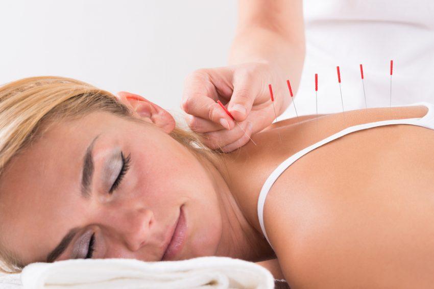 50 Healthcare Business Ideas - Acupuncturist
