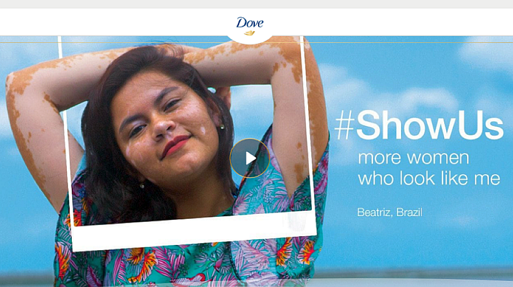 Dove - case study, cause related marketing examples